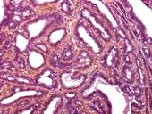 Benign breast disease. Score of 393 biopsies