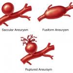 Аневризми на аортата