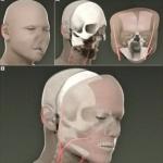 Трансплантация на лице