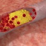 Парциално тромбопластиново време
