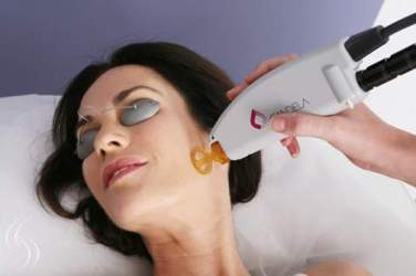 Face-Laser-Hair-Removal